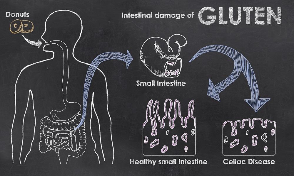Intestinal Damage of Gluten - Coeliacs should be on a gluten free diet to avoid intestinal damage
